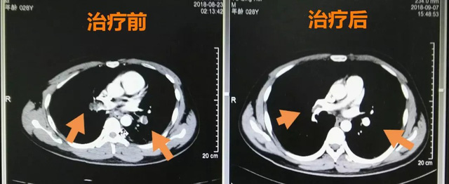 Chàng trai 28 tuổi mắc bệnh thuyên tắc phổi vì thói quen mà hầu hết dân văn phòng đều mắc phải - Ảnh 2.