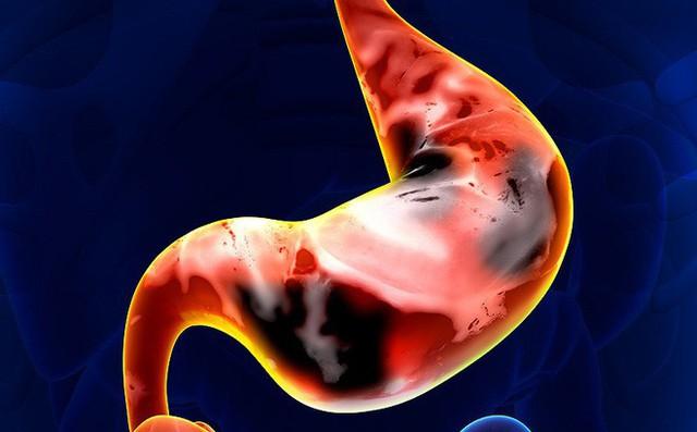 Không chỉ tăng huyết áp mà còn có nguy cơ ung thư vì 1 thói quen phổ biến của người Việt - Ảnh 1.