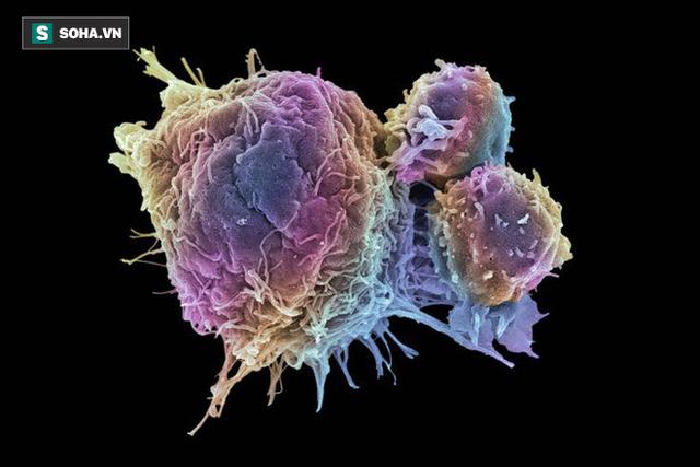 Mầm ung thư ẩn náu ở 7 loại thực phẩm: Nếu không muốn mắc bệnh, bạn nên đặc biệt chú ý! - Ảnh 1.