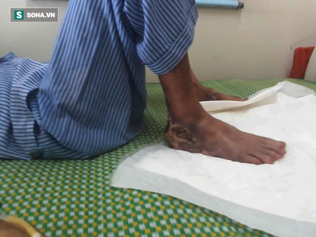 Mỗi 30 giây trên thế giới có 1 người phải cắt chân: Căn bệnh này cũng đang tăng nhanh ở VN - Ảnh 2.