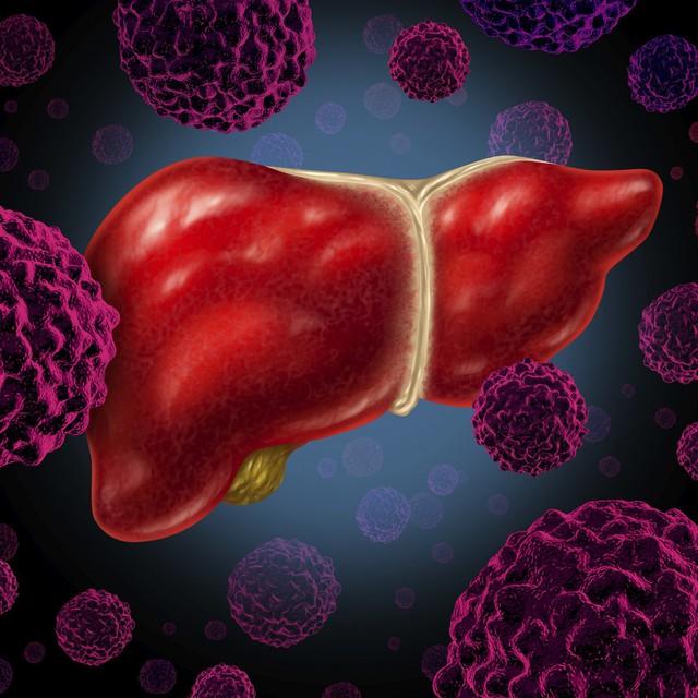Tỷ lệ mắc ung thư gan ở Việt Nam cao thứ 5 thế giới và đây là cách để phòng chống - Ảnh 1.