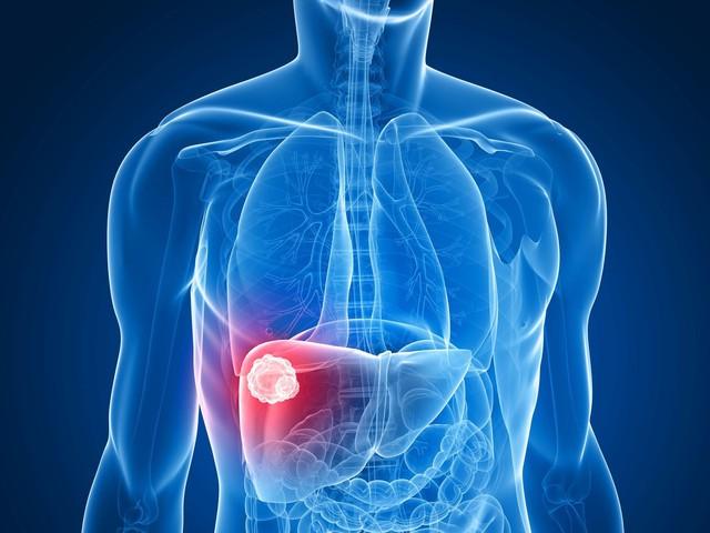 Tỷ lệ mắc ung thư gan ở Việt Nam cao thứ 5 thế giới và đây là cách để phòng chống - Ảnh 2.