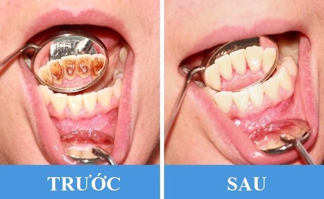 8 sai lầm phổ biến gây hại răng miệng: Chắc chắn ai cũng dính ít nhất một cái - Ảnh 5.