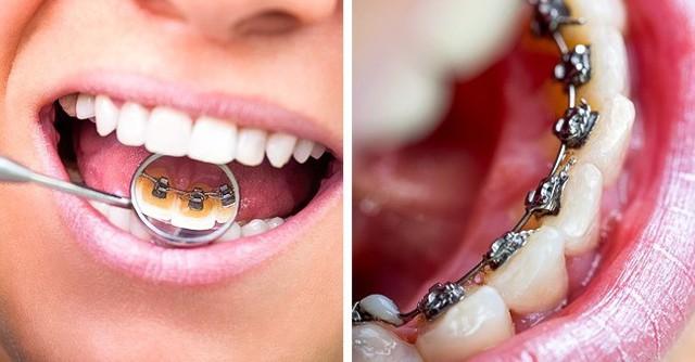 8 sai lầm phổ biến gây hại răng miệng: Chắc chắn ai cũng dính ít nhất một cái - Ảnh 6.