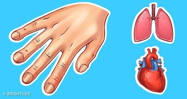 Dấu hiệu ở tay cũng có thể chỉ ra một số vấn đề về sức khỏe, đừng bao giờ bỏ qua dấu hiệu thứ 4 - Ảnh 4.