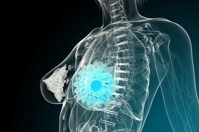 Ung thư cũng biết chọn mặt gửi mầm bệnh với 8 nhóm người: Ai cũng nên xem để phòng tránh - Ảnh 3.