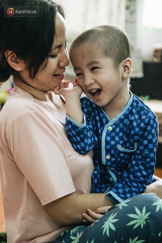 Lời tâm sự xúc động từ mẹ em bé ung thư não trong bộ ảnh 24h của Tom: Mình không được than vãn, vì thiệt thòi là con... - Ảnh 21.