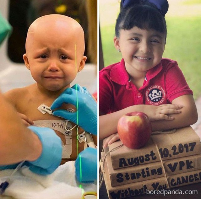 Ngắm 10 bức ảnh có thể truyền cảm hứng mạnh mẽ về bệnh nhân ung thư sau khi chữa khỏi - Ảnh 3.