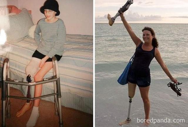 Ngắm 10 bức ảnh có thể truyền cảm hứng mạnh mẽ về bệnh nhân ung thư sau khi chữa khỏi - Ảnh 4.