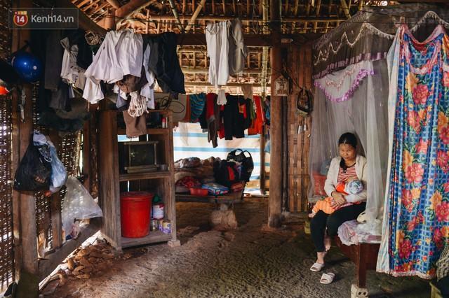 Chuyện về Cún: Em bé Down ở Yên Bái mang nhiều bất hạnh và sự chung tay của cả cộng đồng - Ảnh 3.