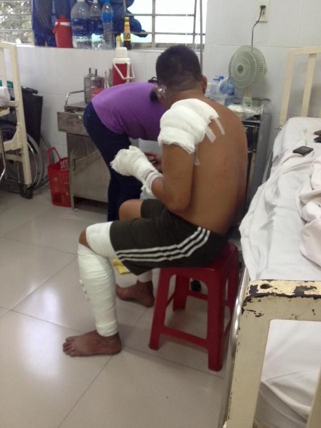 Nữ phóng viên chụp bức ảnh anh lính cứu hỏa bị bỏng tuột da tay: Anh ấy chỉ ngồi đó, mắt vẫn hướng về đồng đội và đám cháy - Ảnh 4.