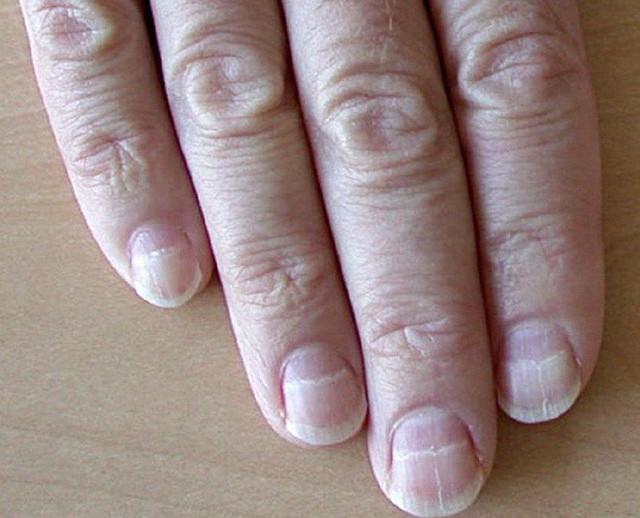 Nếu gan sinh bệnh hoặc nhiễm độc, móng tay sẽ có 3 thay đổi bất thường dễ nhận biết - Ảnh 2.