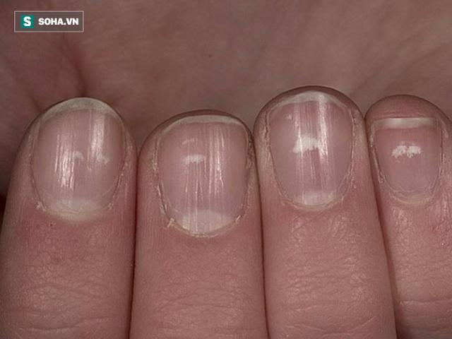 Nếu gan sinh bệnh hoặc nhiễm độc, móng tay sẽ có 3 thay đổi bất thường dễ nhận biết - Ảnh 3.