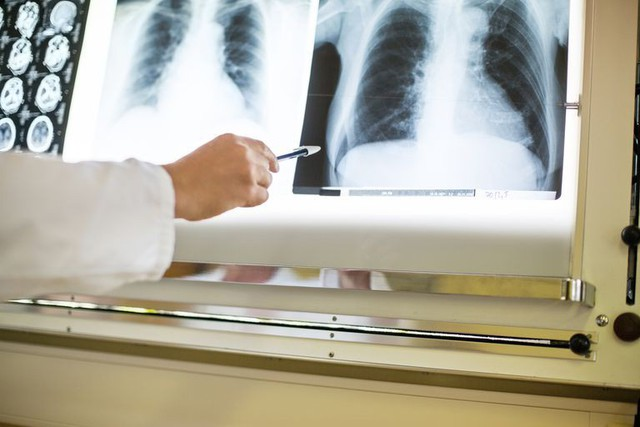 Ung thư tuyến tụy: Khó chuẩn đoán nhưng nguy cơ tử vong cao, đây là những dấu hiệu ban đầu mà bạn thường xem nhẹ - Ảnh 1.
