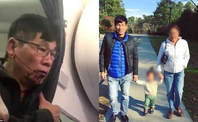 Vụ bác sĩ gốc Việt bị kéo lê thô bạo khỏi máy bay United Airlines: Nhân viên an ninh bị đuổi việc kiện lại hãng hàng không - Ảnh 2.