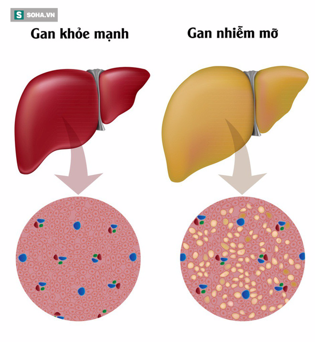 Nguyên nhân gây ra gan nhiễm mỡ và cách khắc phục: Đừng để mắc bệnh rồi mới đề phòng - Ảnh 1.