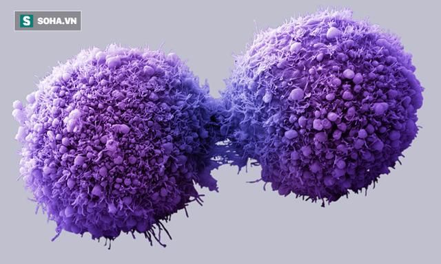 Tổng hợp 15 nguyên tắc phòng chống ung thư và 9 dấu hiệu cảnh báo sớm bạn không nên bỏ qua - Ảnh 1.