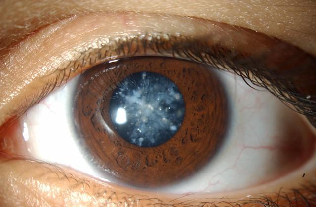 4 căn bệnh ở mắt nếu không chữa trị sớm có thể dẫn tới nguy cơ mù lòa - Ảnh 1.