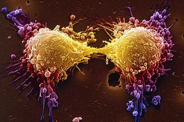 Liệu chúng ta có thể giết chết tế bào ung thư khi chúng đang ngủ? - Ảnh 2.