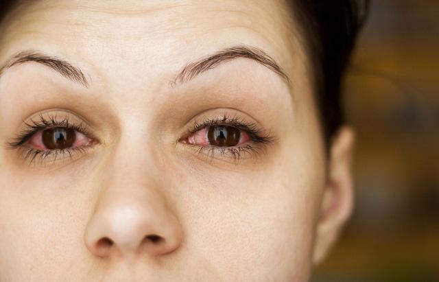 Vệt đỏ trong mắt có thể ngầm báo hiệu một số vấn đề sức khỏe nghiêm trọng - Ảnh 3.