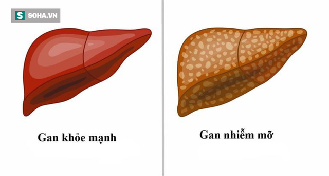 Dấu hiệu cảnh báo gan nhiễm mỡ: Phát hiện sớm sẽ tránh được bệnh viêm gan và xơ gan - Ảnh 1.