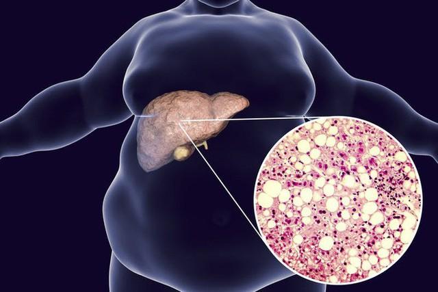Dấu hiệu cảnh báo gan nhiễm mỡ: Phát hiện sớm sẽ tránh được bệnh viêm gan và xơ gan - Ảnh 2.