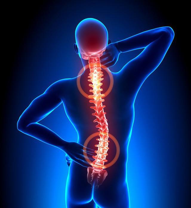 18 thói quen hàng ngày có thể làm giảm đau trong cơ thể của bạn hiệu quả không ngờ - Ảnh 15.