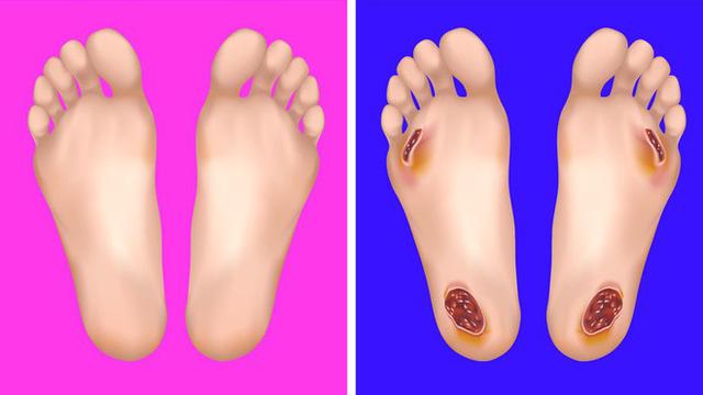Nhìn ngay xuống bàn chân soi dấu hiệu bệnh tật cư trú trong người: Số 3 rất nguy hiểm! - Ảnh 3.