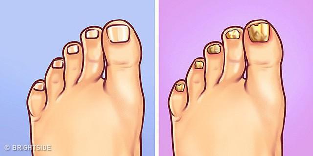 Nhìn ngay xuống bàn chân soi dấu hiệu bệnh tật cư trú trong người: Số 3 rất nguy hiểm! - Ảnh 5.