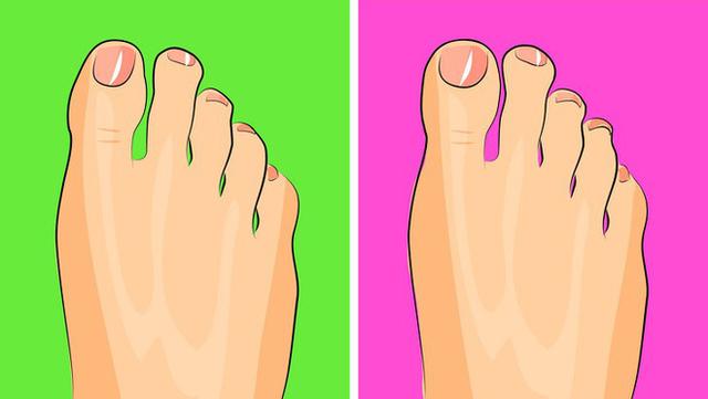Nhìn ngay xuống bàn chân soi dấu hiệu bệnh tật cư trú trong người: Số 3 rất nguy hiểm! - Ảnh 8.