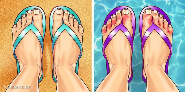 Nhìn ngay xuống bàn chân soi dấu hiệu bệnh tật cư trú trong người: Số 3 rất nguy hiểm! - Ảnh 9.