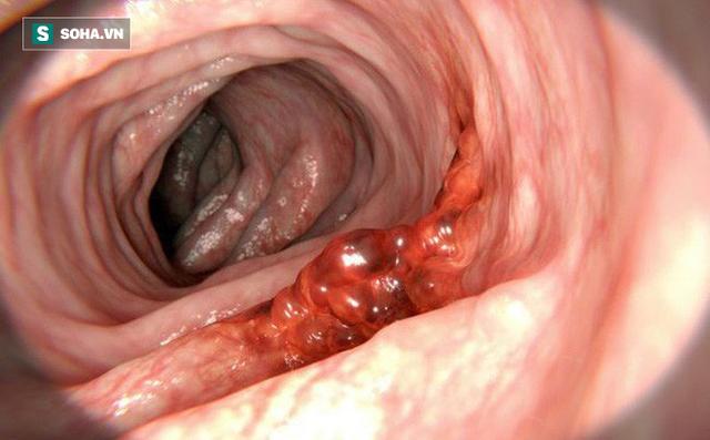 Chủ quan với dấu hiệu đau bụng, 32 tuổi đã bị ung thư giai đoạn cuối, không thể điều trị - Ảnh 1.