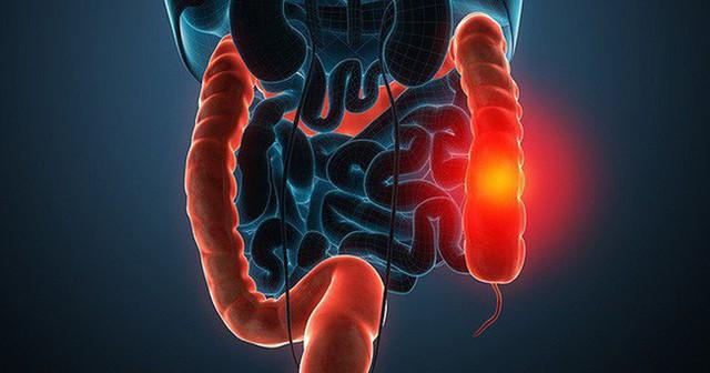 Chủ quan với dấu hiệu đau bụng, 32 tuổi đã bị ung thư giai đoạn cuối, không thể điều trị - Ảnh 2.