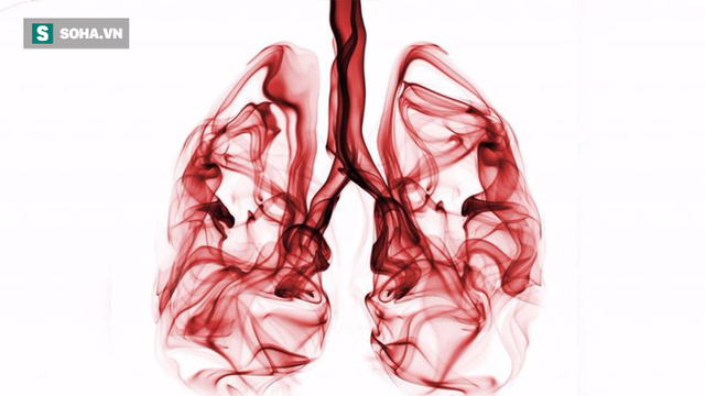 Khi bị ho, sốt và 3 dấu hiệu đi kèm cùng lúc, cẩn thận ung thư phổi đã vào giai đoạn nặng - Ảnh 1.
