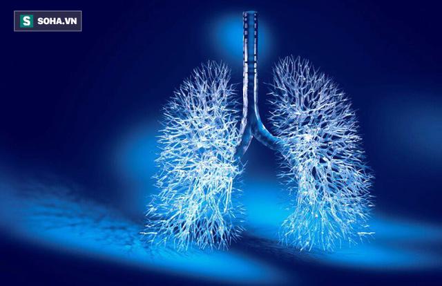 6 nhóm người có nguy cơ cao mắc ung thư phổi: 5 giải pháp phòng ngừa sớm giúp giảm tử vong - Ảnh 1.