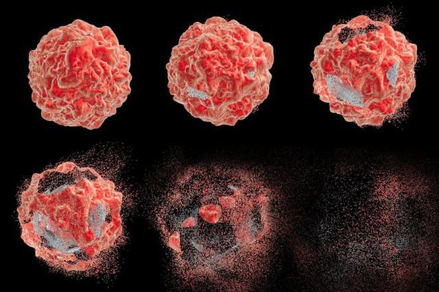 6 nhóm người có nguy cơ cao mắc ung thư phổi: 5 giải pháp phòng ngừa sớm giúp giảm tử vong - Ảnh 3.