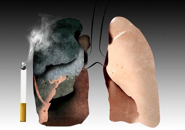 6 nhóm người có nguy cơ cao mắc ung thư phổi: 5 giải pháp phòng ngừa sớm giúp giảm tử vong - Ảnh 4.