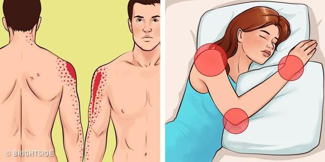 Tư thế nằm có ảnh hưởng thế nào đến chất lượng giấc ngủ, hiểu điều này để không mệt mỏi khi thức dậy dù đã ngủ đủ 8 tiếng - Ảnh 2.