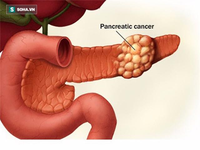 Đau bụng đi ngoài có thể là dấu hiệu sớm của 4 bệnh ung thư: Đau thế nào thì nên đi khám? - Ảnh 1.