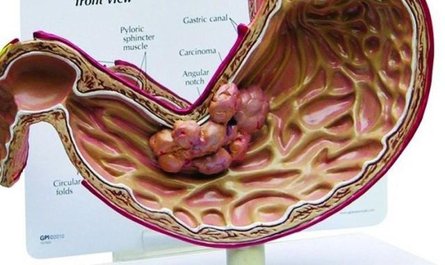Đau bụng đi ngoài có thể là dấu hiệu sớm của 4 bệnh ung thư: Đau thế nào thì nên đi khám? - Ảnh 3.
