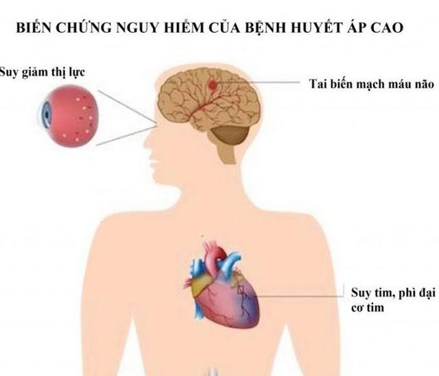50% bệnh nhân mắc căn bệnh này chỉ sống được 5 năm, Việt Nam có rất nhiều người mang bệnh - Ảnh 1.