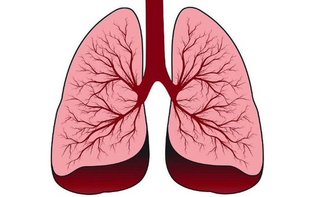 Xu hướng người trẻ tuổi mắc ung thư phổi đang tăng nhanh: Làm sao để phát hiện sớm nhất? - Ảnh 2.