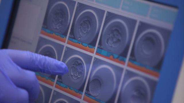 Hai anh em người Việt ghi dấu ấn với trí tuệ nhân tạo trong y khoa - Ảnh 3.