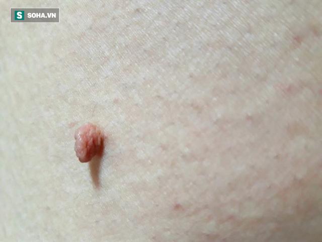 10 dấu hiệu lạ trên da tố cáo bệnh tiểu đường, ung thư, viêm gan và tuyến giáp - Ảnh 1.