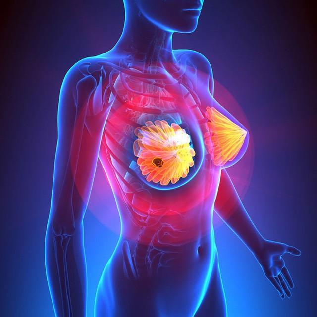 9 bí quyết chữa lành ung thư của 1500 người sống sót kỳ diệu: 3 điều thuộc về cảm xúc! - Ảnh 1.