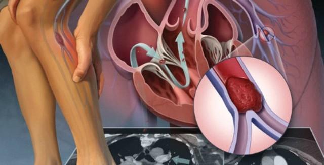 Đừng đùa với những đường gân loằng ngoằng, không cẩn thận có thể biến chứng vào tim, phổi - Ảnh 2.