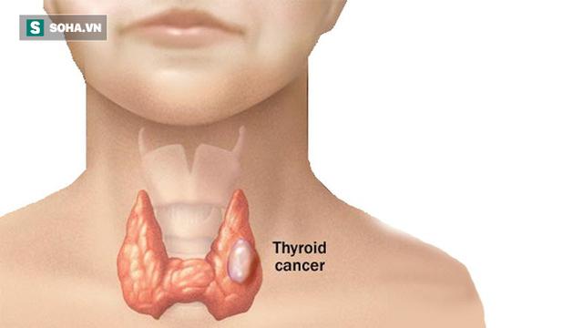 Thấy 5 dấu hiệu này, bạn nên đi khám vì ung thư tuyến giáp đang lớn dần trong cơ thể - Ảnh 1.