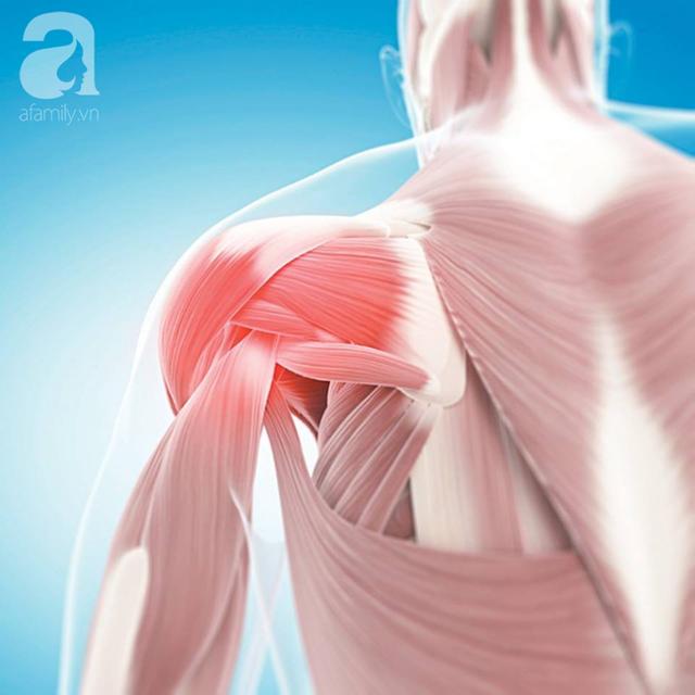 Đừng chủ quan nếu thấy đau vai: Đã có người không thể mặc áo, chải tóc và suýt liệt cánh tay vì chấn thương tưởng nhẹ này - Ảnh 3.