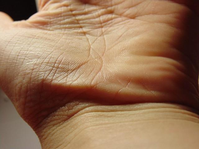 5 dấu hiệu của bệnh suy giáp thông qua các biểu hiện khác thường ở đôi bàn tay - Ảnh 1.