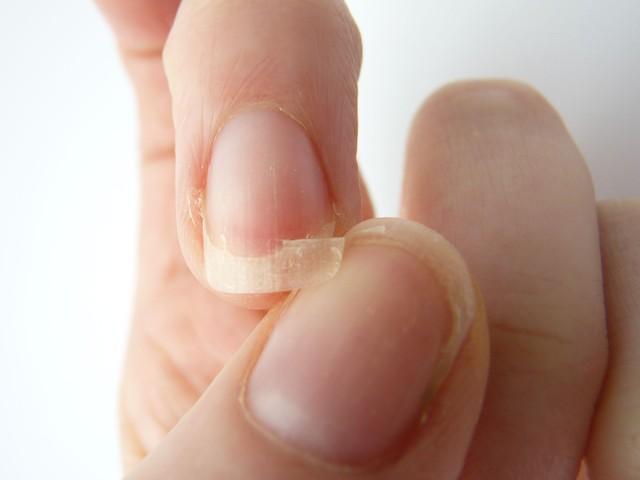 5 dấu hiệu của bệnh suy giáp thông qua các biểu hiện khác thường ở đôi bàn tay - Ảnh 3.